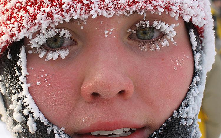 Отаномального мороза пострадали больше полусотни жителей столицы